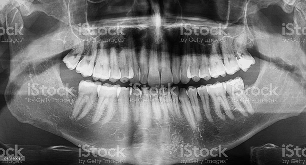 Panoramic dental x-ray image of jaw with all teeth showing dental fillings and cavities stock photo