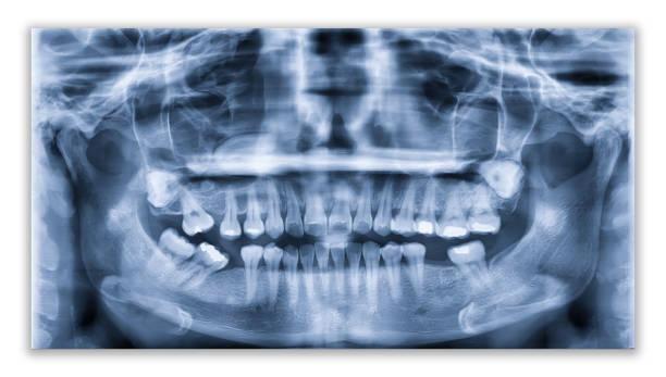 Panorama Zahnröntgen Bild oder Orthopantomogram des Unterkiefers mit allen Zähnen in der Zahnheilkunde verwendet, für die Diagnose von Krankheiten, Störungen und Bedingungen der Mundhöhle – Foto