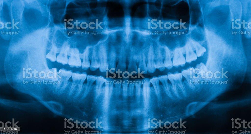 Panoramic dental x-ray image stock photo