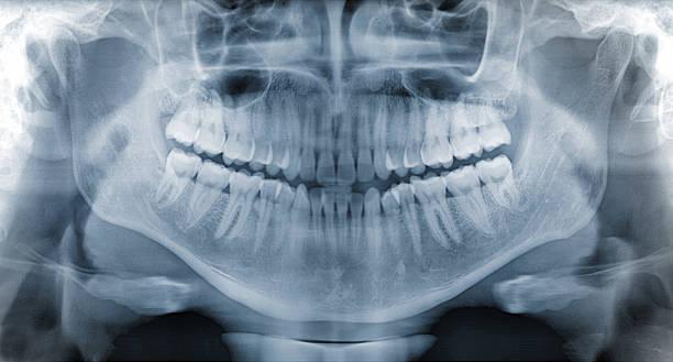 panorama dental x-ray - menschlicher mund stock-fotos und bilder
