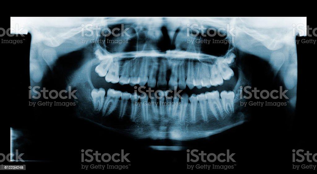 Radiografía Dental PanorÁmica - Fotografía de stock y más imágenes ...