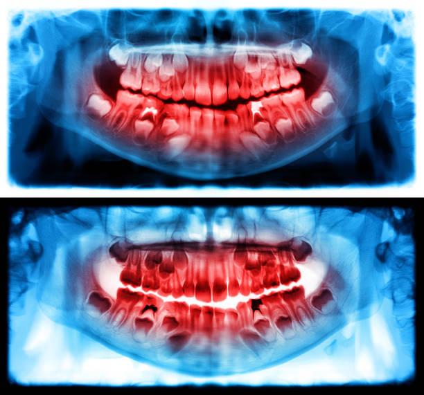 Panorama-Röntgenaufnahme ist ein Scan dental Panoramaröntgen von Ober- und Unterkiefer. Dies ist eine fokale Flugzeug-Tomographie zeigt den Oberkiefer und Unterkiefer eines Kindes im Alter von sieben Jahren. – Foto