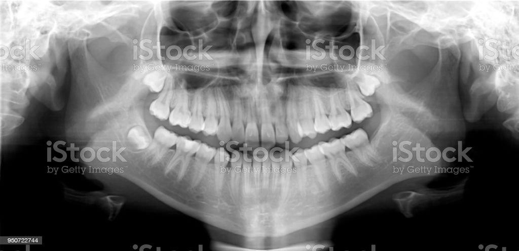Panorámica Dental Tiro - Fotografía de stock y más imágenes de ...