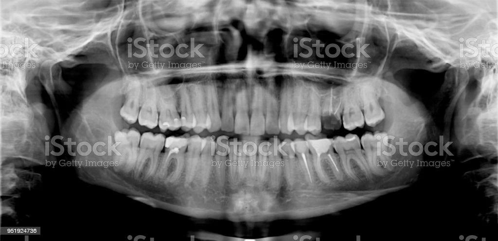 Fotografía de Panorámica Dental Tiro y más banco de imágenes de ...