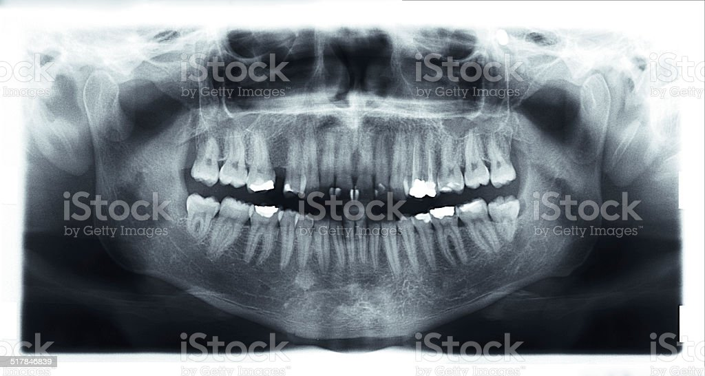 panoramic x-ray of mouth. stock photo