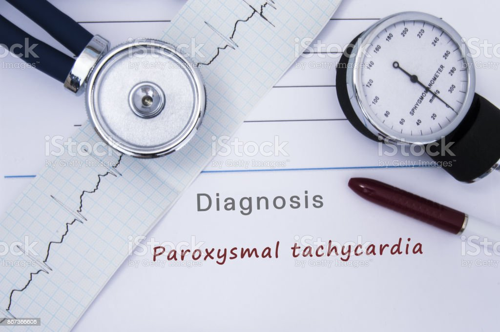 Paper medical release form with diagnosis of Paroxysmal tachycardia from category Cardiac arrhythmia diseases with printed ECG, stethoscope. Medical report of cardiologist or doctor internal medicine stock photo