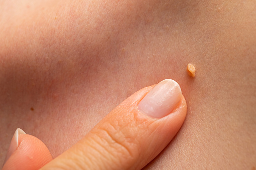 What You Need To Know About Condyloma aka Genital warts?