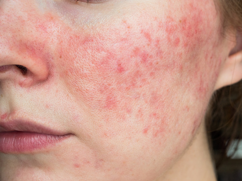 papulopustular rosacea, close-up of the patient's cheek