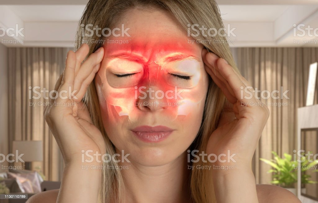 como quitar el dolor de cabeza sinusitis