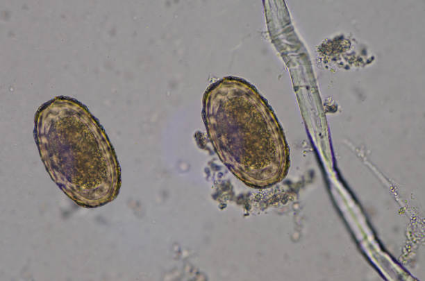 Parasite egg Ascaris lumbricoides find with microscope in laboratory. Parasite egg Ascaris lumbricoides find with microscope in laboratory. roundworm stock pictures, royalty-free photos & images