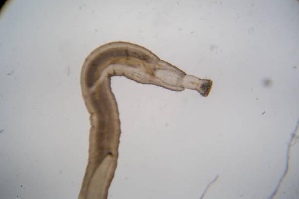 parasitäre (dornige-kopf wurm) unter dem mikroskop der bildung im labor. - schichthaare stock-fotos und bilder