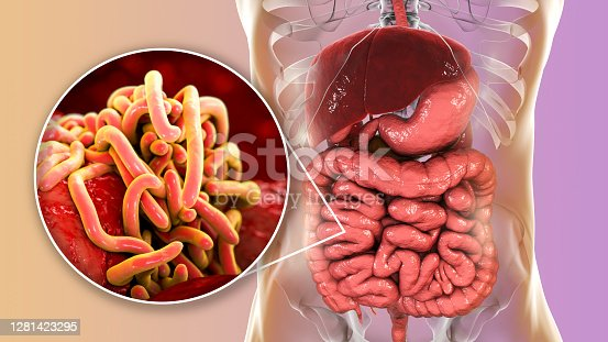 Parasitic worms in human intestine, 3D illustration. Ascaris lumbricoides and other round worms