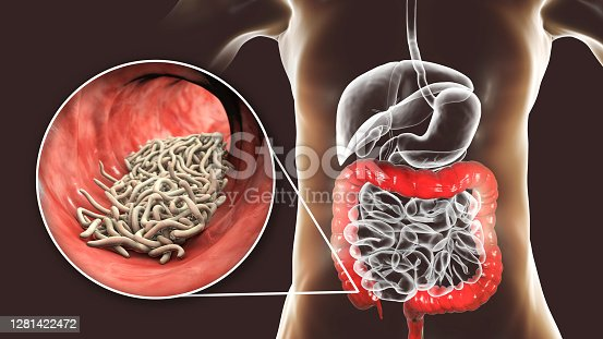 Parasitic worms in human large intestine, 3D illustration. Enterobius vermicularis and other round worms