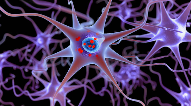 Parkinson's disease. 3D illustration showing neurons containing Lewy bodies small red spheres which are deposits of proteins (alpha-synuclein) accumulated in the brain cells. stock photo