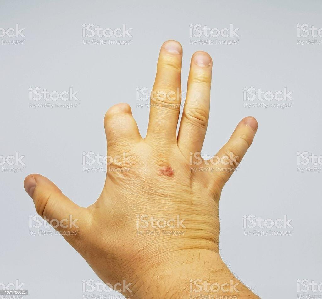 Partielle Amputation, Finger. – Foto