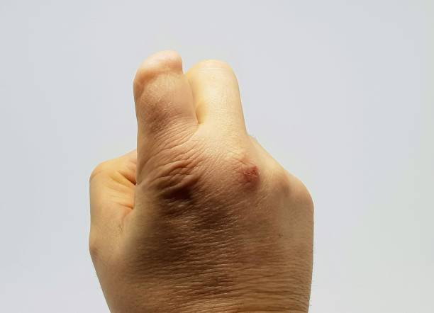 Partial amputation to finger. stock photo