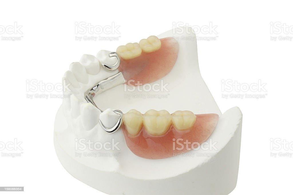 Partial Denture royalty-free stock photo