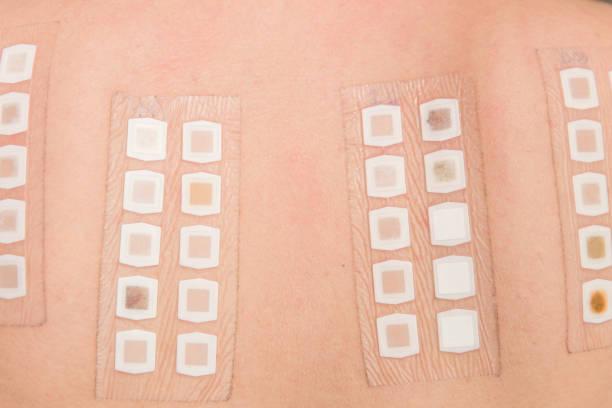 patch-test auf der rückseite der patientin - lautsprecher test stock-fotos und bilder