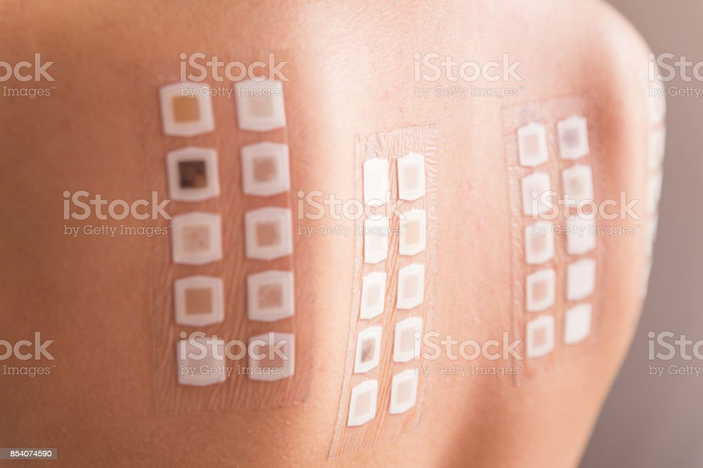 Patch test on back of female patient stock photo