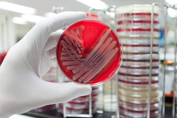 Pathogenic bacteria A hand with a medical glove is holding a agar plate with a culture of a pathogenic bacteria. antibiotic resistant stock pictures, royalty-free photos & images