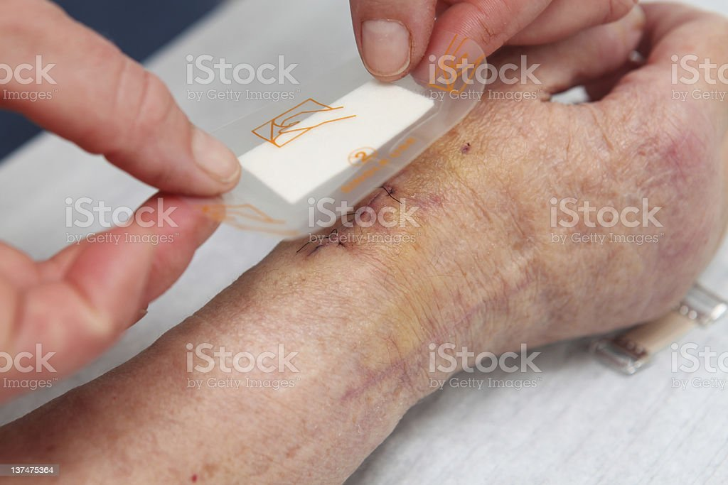 Patien after wrist operation...nurse at work royalty-free stock photo