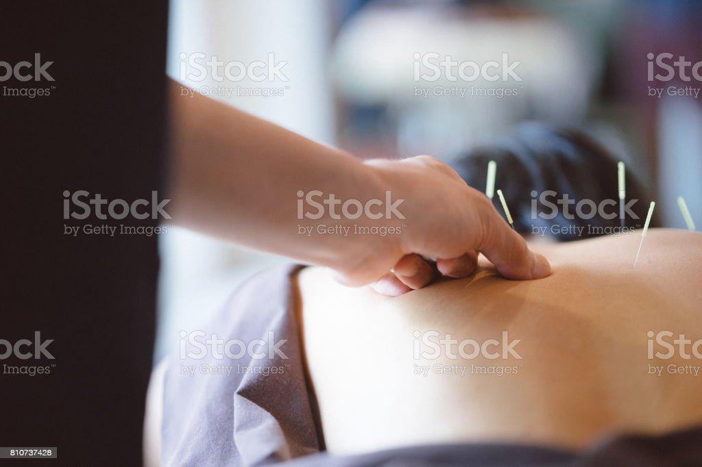 Paciente recibe tratamiento de acupuntura - foto de stock