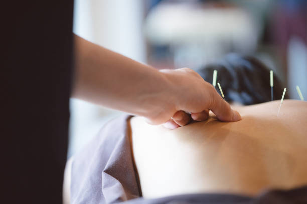 Patient receiving acupuncture treatment stock photo