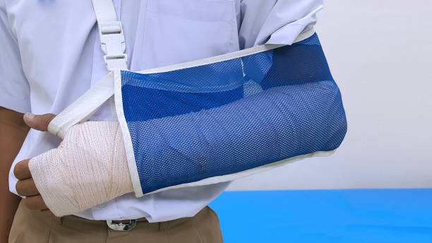 Patient 's broken bone treatment by orthopedic arm cast and arm sling. Plaster cast and slab is device used to immobilize, stabilize and support fracture.  Medical stabilizer and equipment concept stock photo