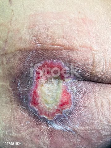 istock Patient skin with very big pressure sores and bed sores. Infected wound. Medical and healthcare concept. 1257581524