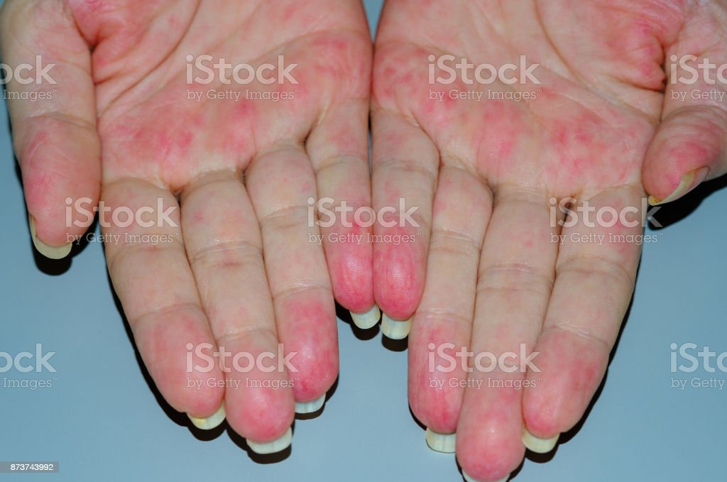 Patient suffering from Vasculitis stock photo