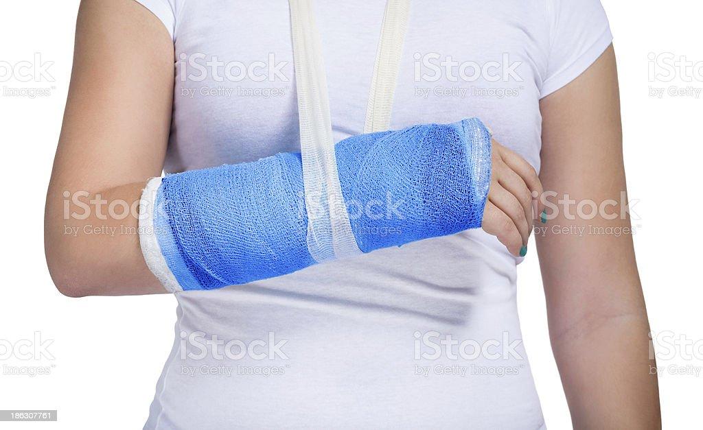 Paciente con un brazo de fundido - foto de stock