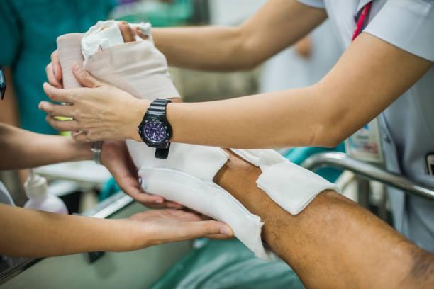 patient with broken leg and splinted for treatment in the hospital. - caviglia foto e immagini stock