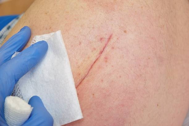 Patient with fresh long scar on hip lay in hospital bad. Nurse hand clear the skin. stock photo