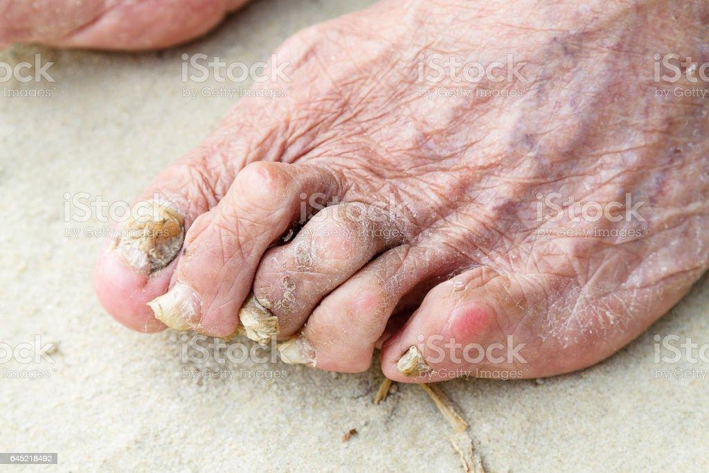 Patients legs stock photo