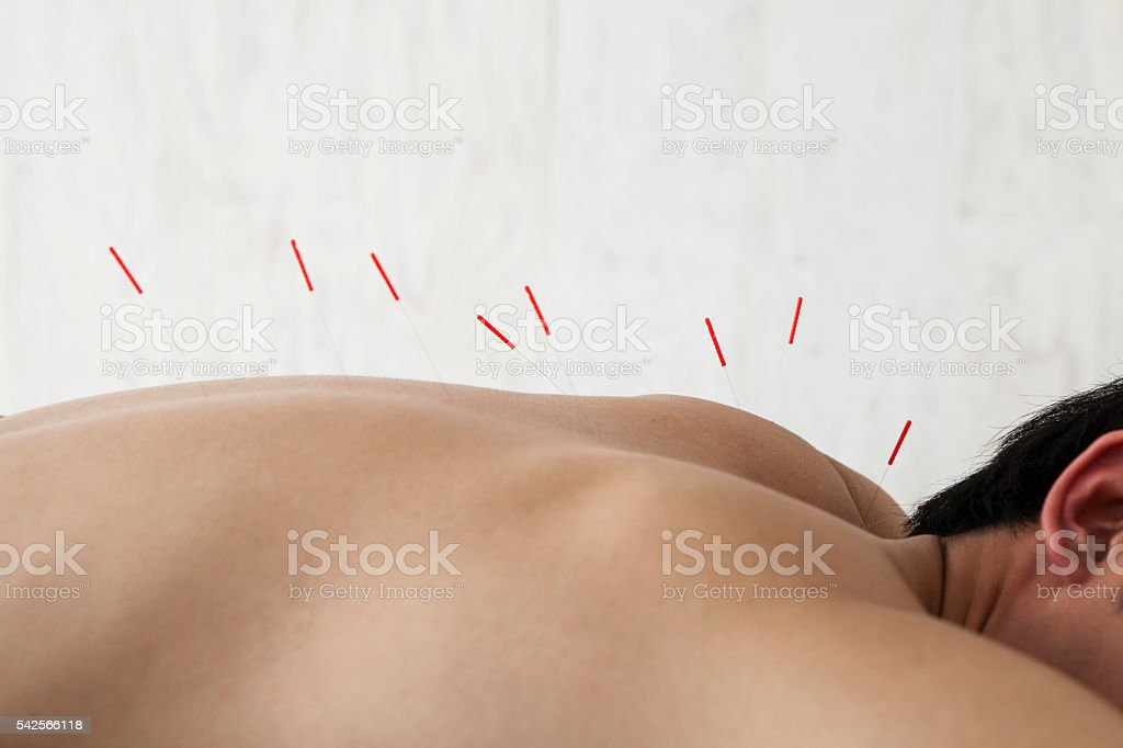 Patients receiving acupuncture treatment at the salon stock photo