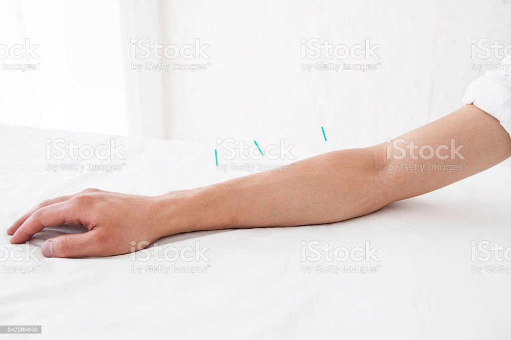 Patients receiving acupuncture treatment in the arm for health
