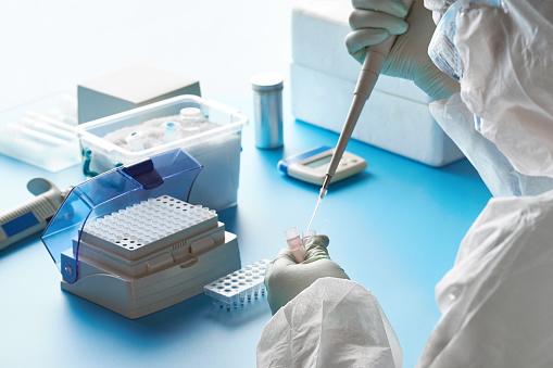 Sarscov2 Pcr診断キット防護服マスク眼鏡の疫学者は患者の綿棒と協力してcovid19ウイルス性肺炎を引き起こす2019ncovウイルスの特定の領域を検出します - COVID-19のストックフォトや画像を多数ご用意