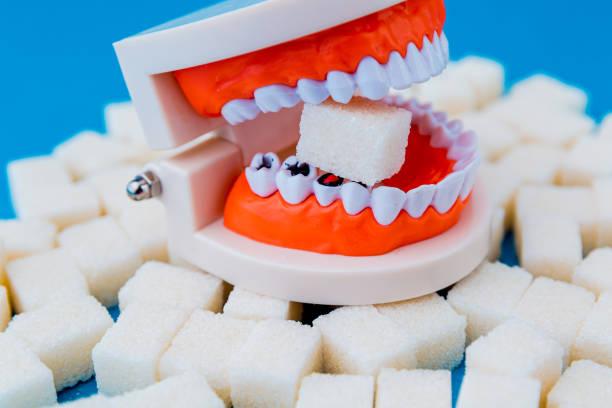 ein frieden von zucker im falschen kiefer mit vielen löchern in den zähnen isoliert. - dextrose stock-fotos und bilder