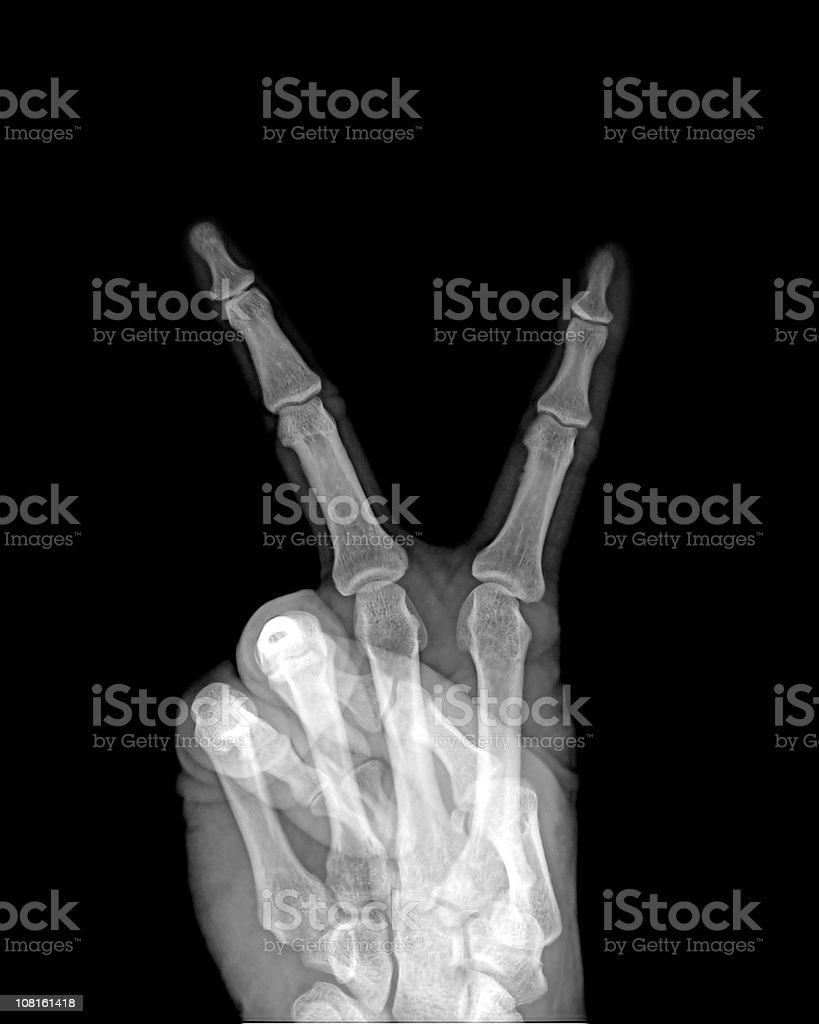 Peace Sign  Hand Gesture Under X-ray stock photo
