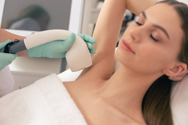 Peaceful woman having closed eyes during laser hair removal stock photo