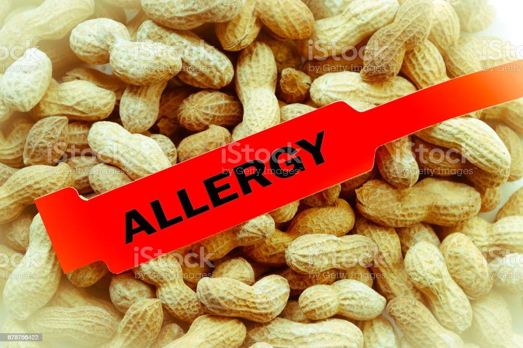 Peanut Allergy Bracelet stock photo