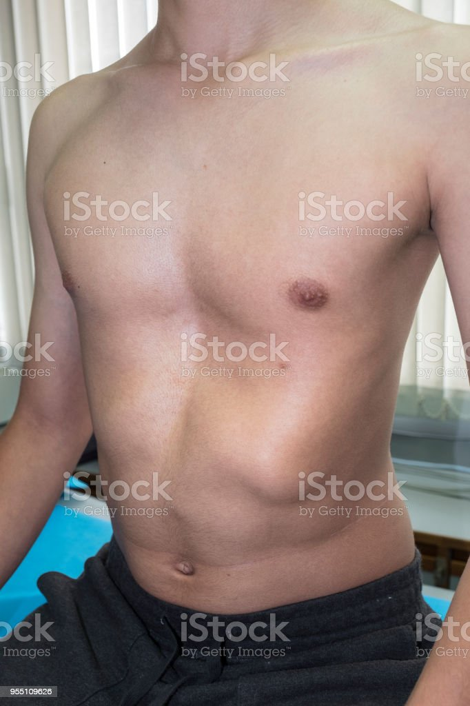Pectus Excavatum - Sunken Chest A male patient presenting a congenital deformity of the anterior thoracic wall. Adult Stock Photo