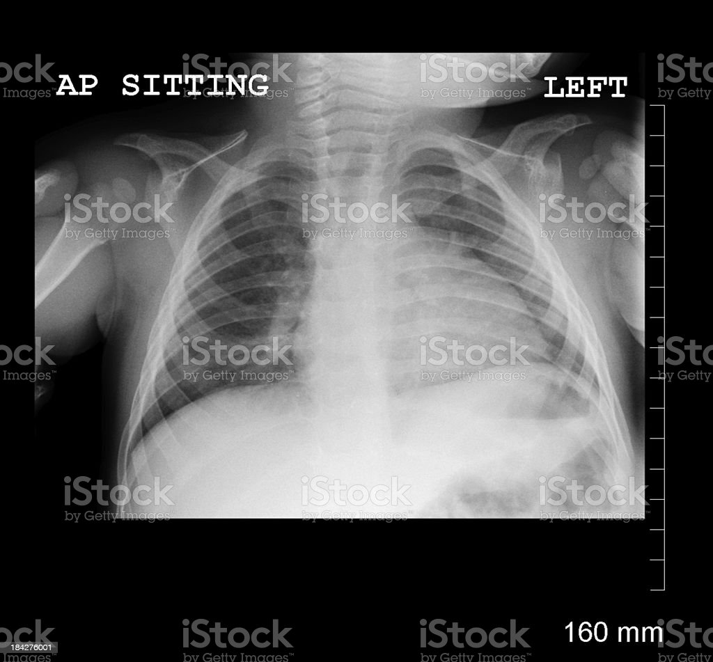 Pediatric Chest Xray Stock Photo & More Pictures of 12-17 Months ...