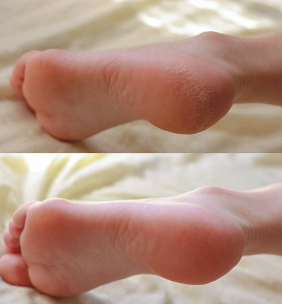 Pedicure. Cracks and dry callus on the heels. Sloppy and groomed legs. Lack of vitamins. Skin diseases feet. Before and after treatment. stock photo