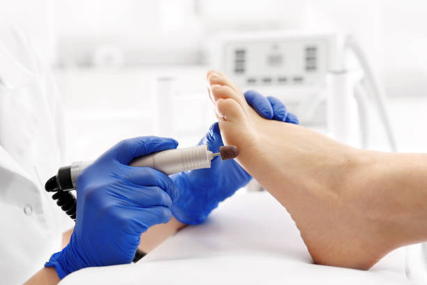 pedicure treatment. - podiatry stock pictures, royalty-free photos & images
