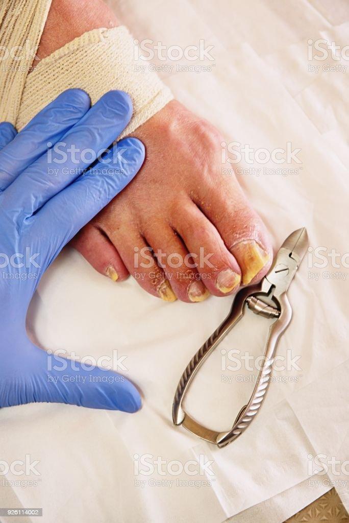 Pedicurist hands in  sterile gloves cut nails and cuticles closeup . Hardware manicure. stock photo