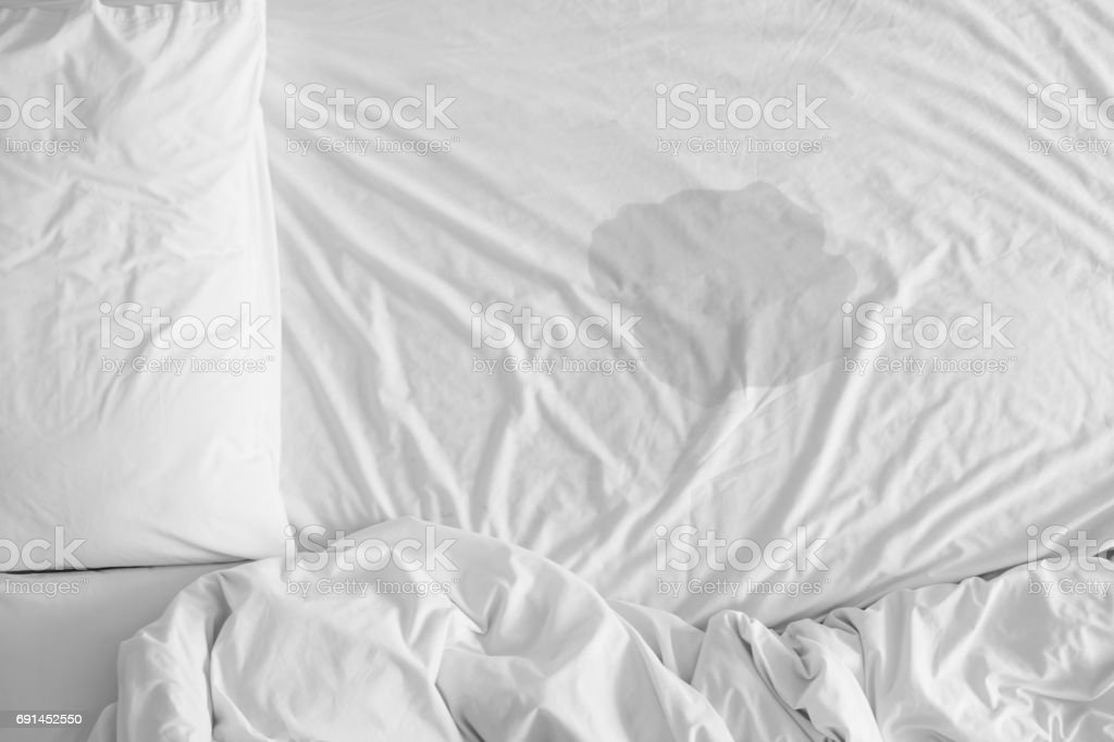 Pee on a bed mattress,Bedwetting sleep enuresis in Adults or baby concept,selected focus at wet on the bed sheet stock photo