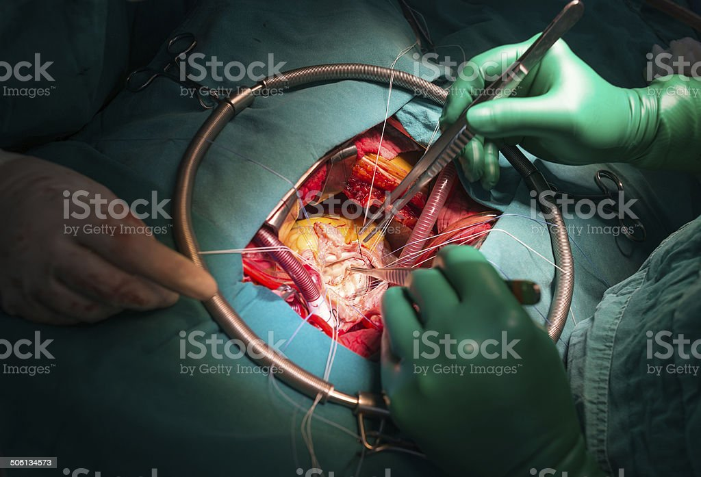peeling calcified from mitral valve leaflet stock photo