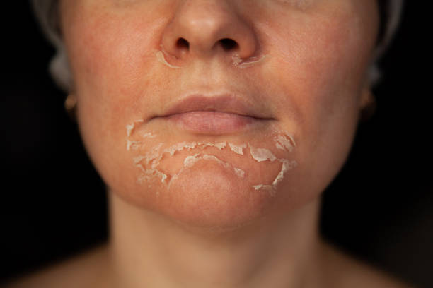 Peeling skin on the face. Woman's face after chemical peeling. Exfoliation of old skin. stock photo