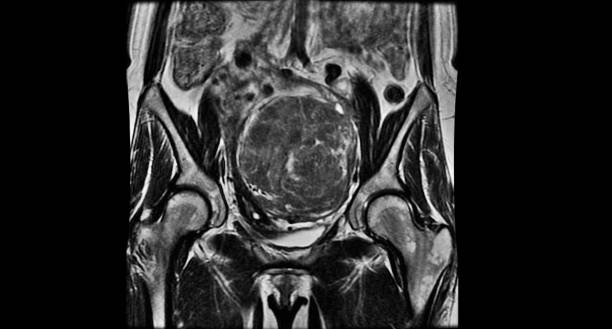 MRI pelvis of a woman - benigne tumor uterine myoma - weight after surgery 1kg stock photo